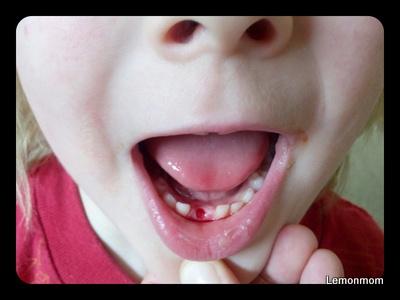 Wypadł ząbek